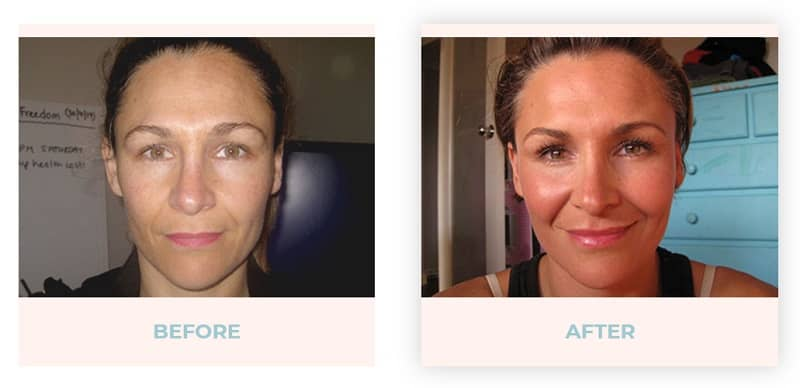 Face yoga before and after