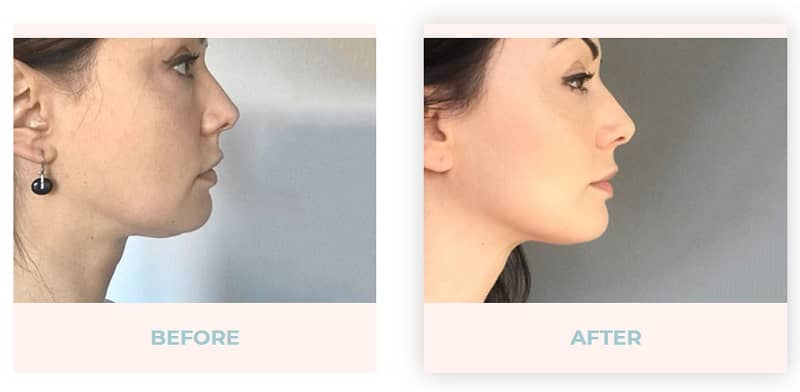 Facial exercise before and after