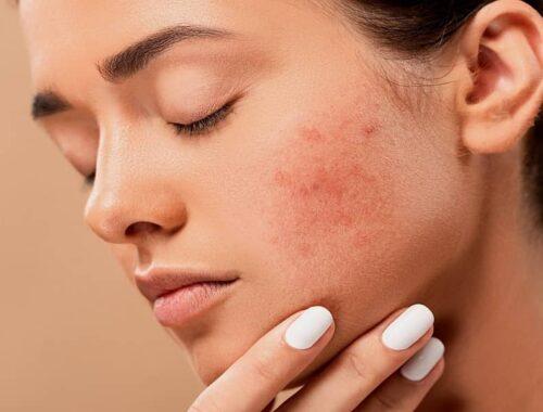 how to relieve rosacea symptoms