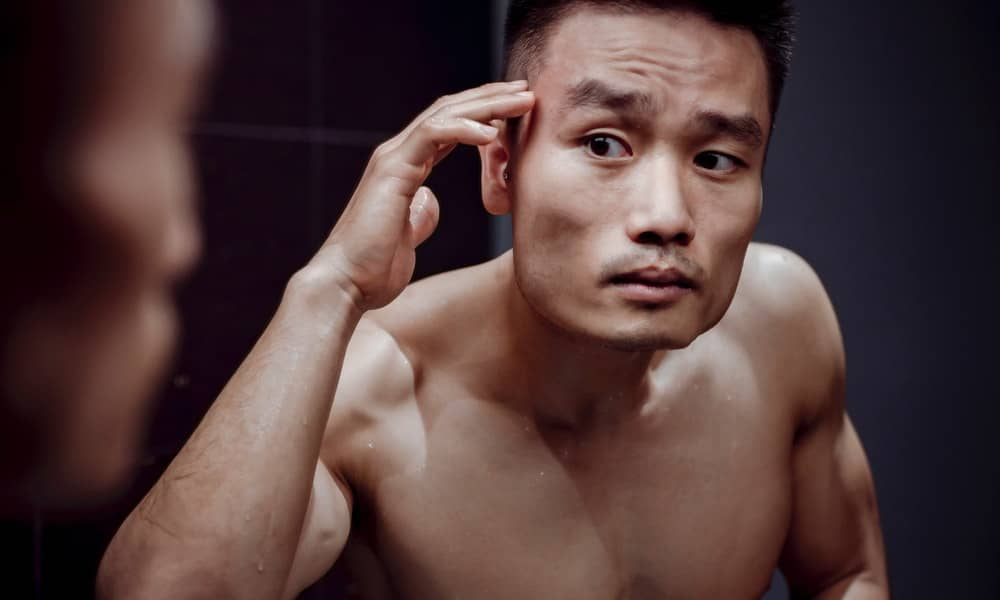 how to stop hair loss after steroid cycle