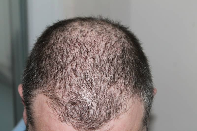 Steroid hair boldenone steroids benefits