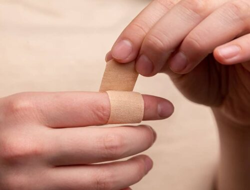 treatment for swollen fingers